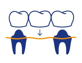 icon dentallabor liefert laborleistungen an die zahnarztpraxis